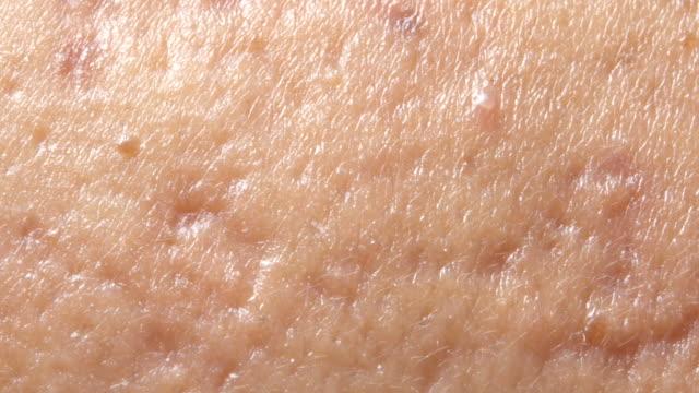 vídeos y material grabado en eventos de stock de acné quístico esférica en la piel. el concepto de dermatología - dermatología