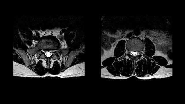 MRI Spinal Column Cross Section 2 Views & 2 Speeds video