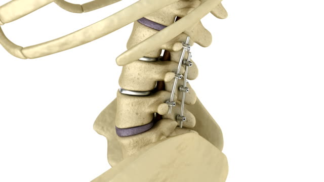 Spinal fixation system - titanium bracket. Medically accurate tooth 3D animation