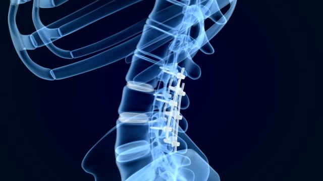 vídeos de stock, filmes e b-roll de sistema de fixação espinhal-suporte de titânio. visão de animação de raio x. - equipamento médico