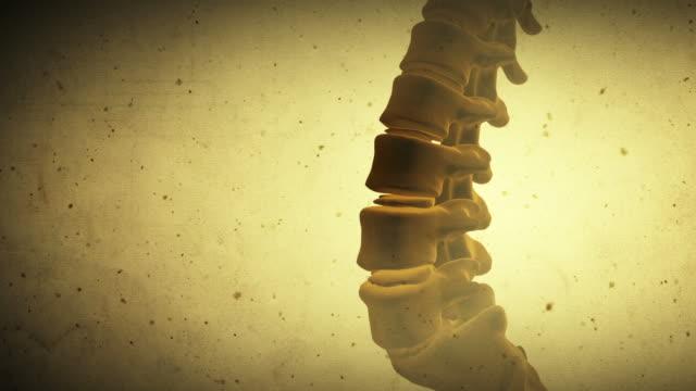 Spine video