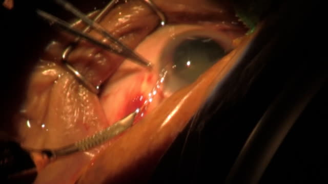 step 5. Surgery Cataract. Category-A(clip 2) video