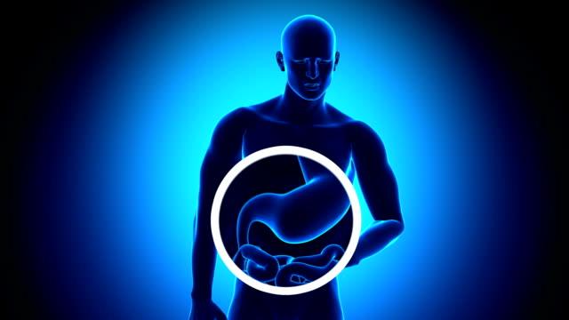 Magen Schmerzen Gastrische Acid-Reflux – Video