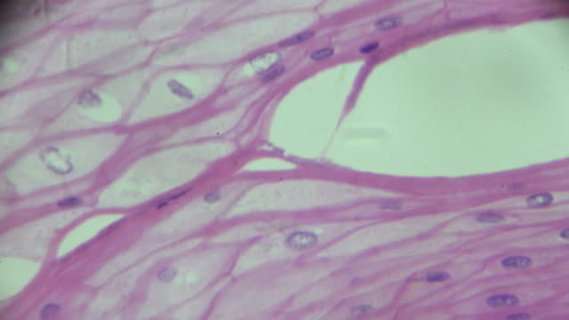 stratified squamous epithelium view in microscopy - derma video stock e b–roll