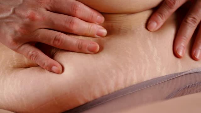 stockvideo's en b-roll-footage met striae - overgewicht