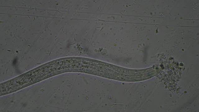 Strongyloides stercoralis larva in stool exam.Parasite in human.