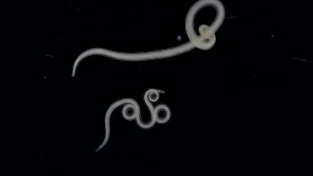 Study  Ascarid nematode of the phylum Nematoda, it is the most common parasitic worm in crab for laboratory testing.