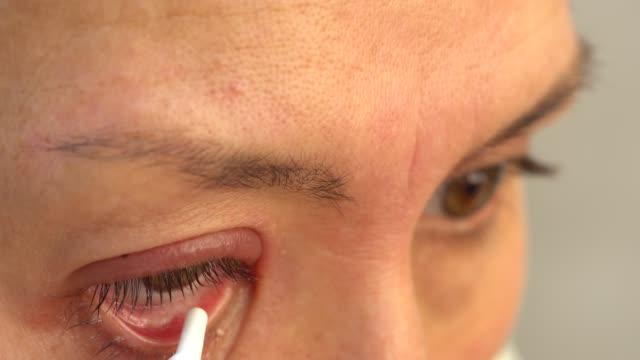 スティ、大群。治療。抗生物質眼のチントの使用 - まぶた点の映像素材/bロール