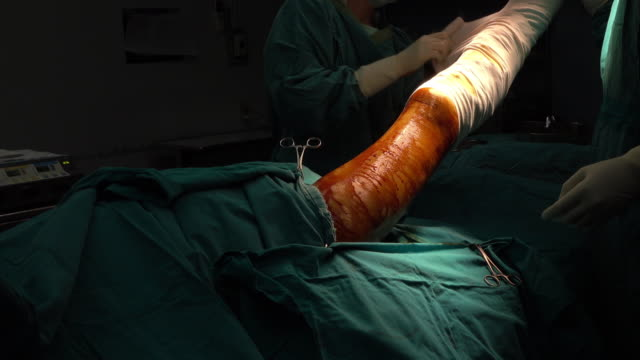 Surgeon and team perform above knee amputation for patients who had right foot wet gangrene video