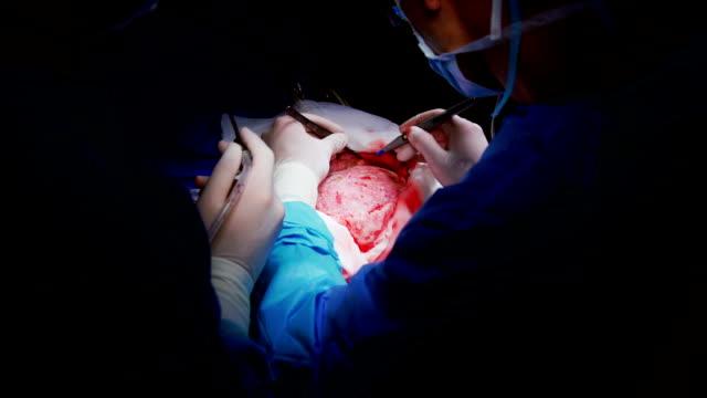 vídeos y material grabado en eventos de stock de cirujano llevar a cabo la operación de craneotomía - autopsia