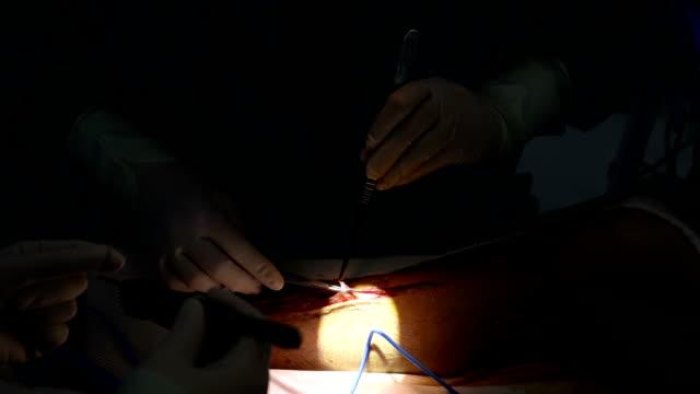vídeos de stock e filmes b-roll de cirurgião colhidos veia de bypass aorto- coronário por enxerto - artéria coronária