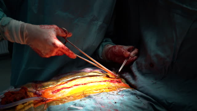 bir cerrah bir yara bir hastanede bir closeup işlemi sonra dikiş - sütür eklem stok videoları ve detay görüntü çekimi