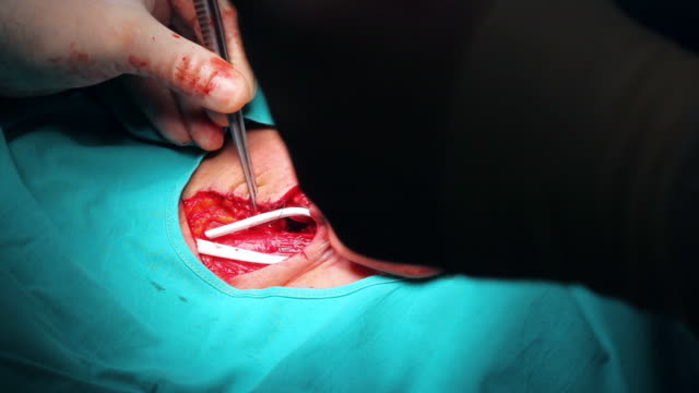 HD: Surgeon is stitching up the patient video