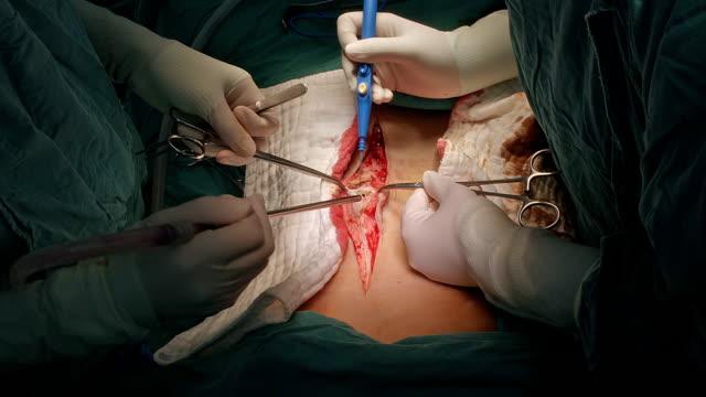 Surgeon open abdomen