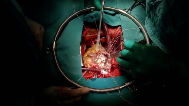 vídeos de stock e filmes b-roll de cirurgião descascando calcificados de mitreal informativo - aorta