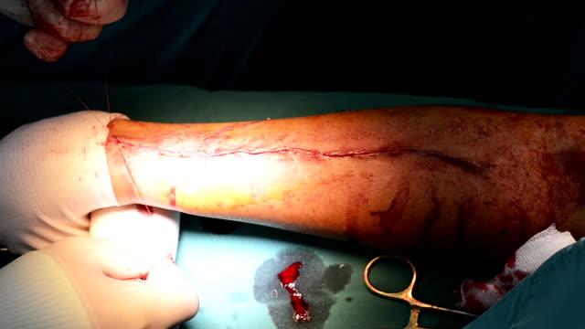 il chirurgo sutura aberdeen nodo - cucitura video stock e b–roll