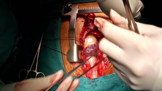 Surgeon Suture Hanging Pericardium video