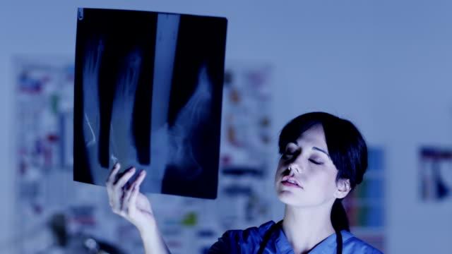 vídeos y material grabado en eventos de stock de los cirujanos médico examina xray images - trabajar hasta tarde