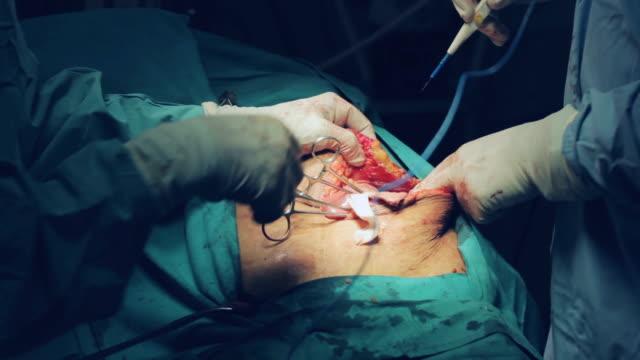 vídeos de stock, filmes e b-roll de cirurgiões, fazendo a operação aberta pelve renal - rim órgão interno