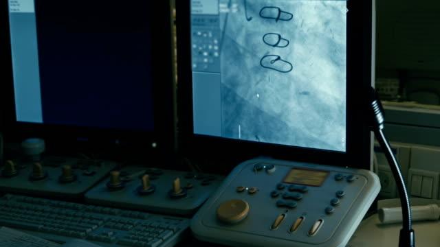 chirurgia pannello di controllo. sangue umano navi di sullo schermo - telecomando background video stock e b–roll
