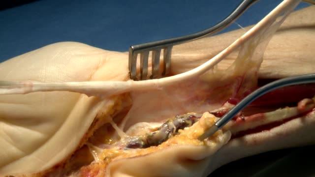 surgery in an operating room video