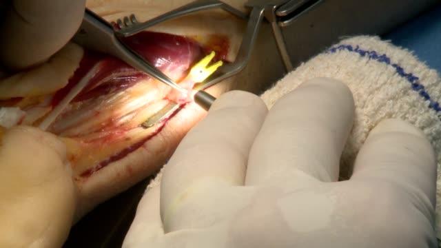 ameliyathane ameliyatı - sütür eklem stok videoları ve detay görüntü çekimi
