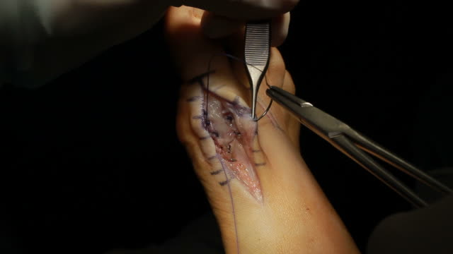 Surgical Operation video