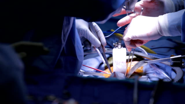 Surgical Procedure Skilled surgeons operate on a patient. operating stock videos & royalty-free footage