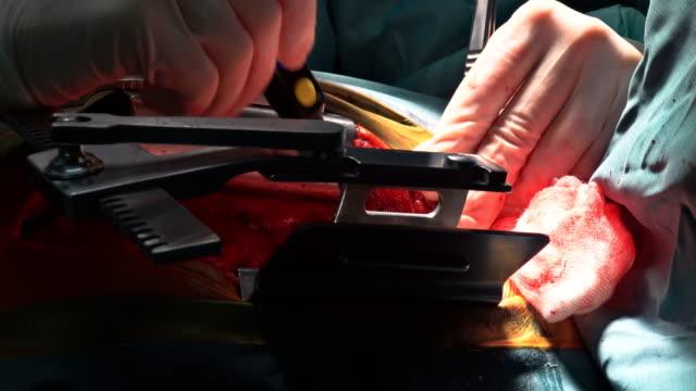 vídeos de stock e filmes b-roll de suture of an lung emphysema surgery in an infant andmedical assistance close-up - artéria coronária