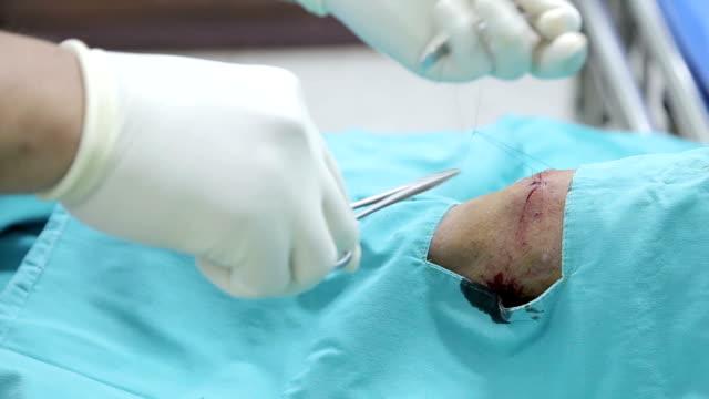sutura. - cucitura video stock e b–roll