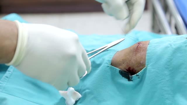 punti di sutura - cucitura video stock e b–roll