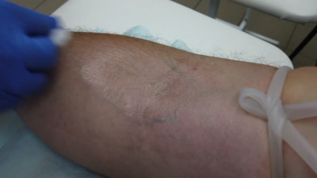 taking a blood sample from a vein for analysis, a syringe needle pierce the vein and collect blood
