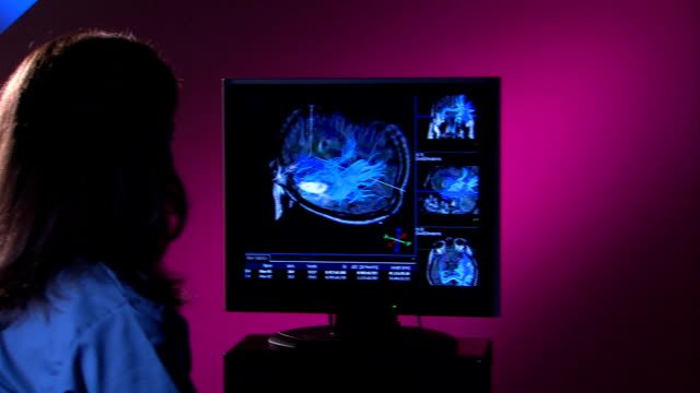 Technician Points to 4 way brain scan video