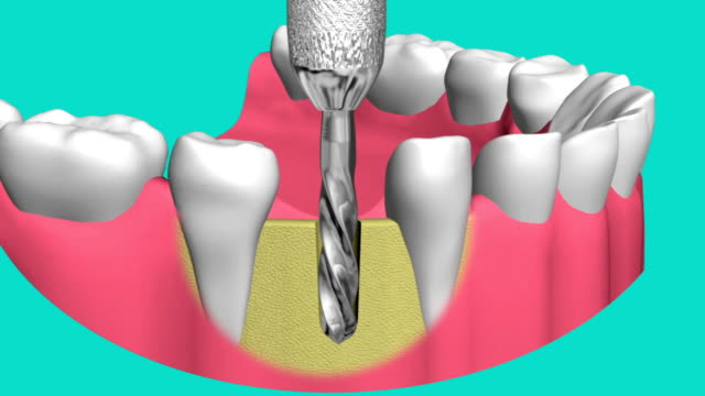 technology of dental implants video