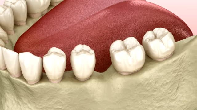 Teeth shift deformatiuon after losing molar tooth. 3D animation of Popov Godon phenomenon Teeth shift deformatiuon after losing molar tooth. 3D animation of Popov Godon phenomenon implant stock videos & royalty-free footage