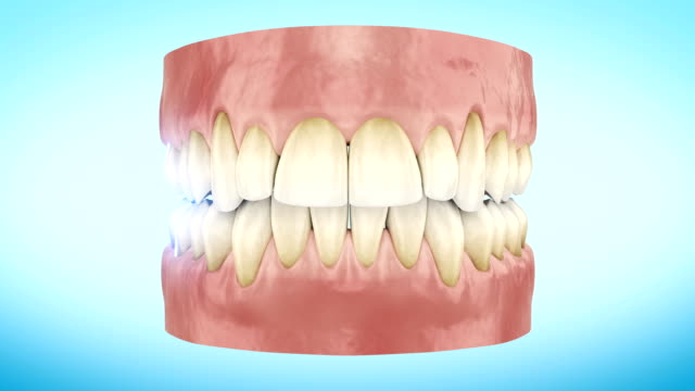 Teeth Whitening Procedure Close Up 3d Animation. video