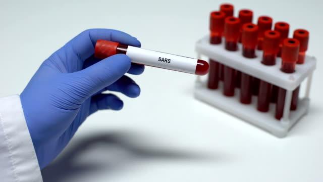 sars-test, läkare som visar blod prov i tub, laboratorie forskning, hälso kontroll - test tube bildbanksvideor och videomaterial från bakom kulisserna