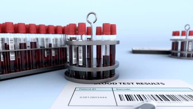 Test tubes with blood sample in reserarch lab video