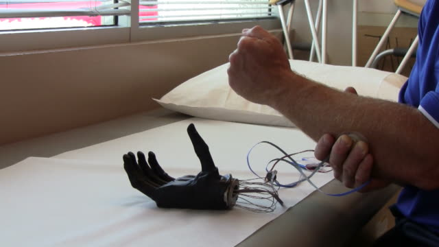 The Bionic Hand video