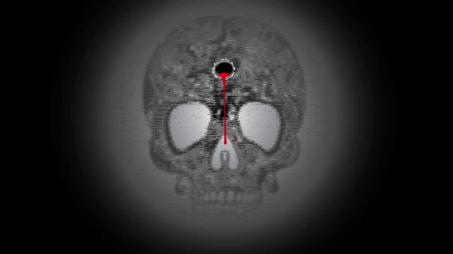 The bullet mark that appears on the skull of a human