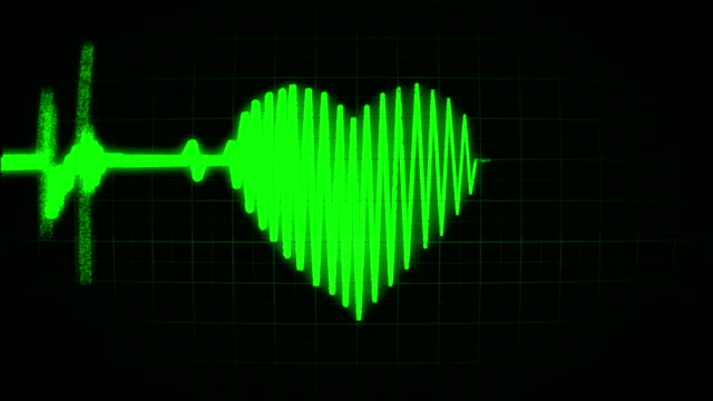 The cardiogram in the shape of a green heart, loop video