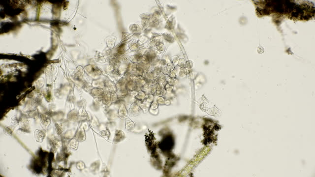 vídeos de stock e filmes b-roll de the colony of vorticella and their movement when reduced, under a microscope - amiba