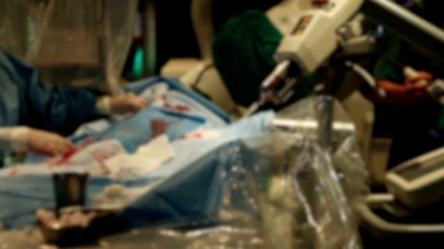 vídeos de stock, filmes e b-roll de o médico e o pessoal está tratando com a sala de operação de cirurgia de bypass cardíaco do coração. - marcapasso cirurgia cardíaca