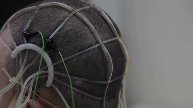 The doctor connects the electronic sensors to the patient's head. Progressive medical technologies. Nanotechnology 4K Close-up. The doctor connects the electronic sensors to the head of the patient for work research of the brain. Progressive medical technologies. Nanotechnology.4K electrode stock videos & royalty-free footage