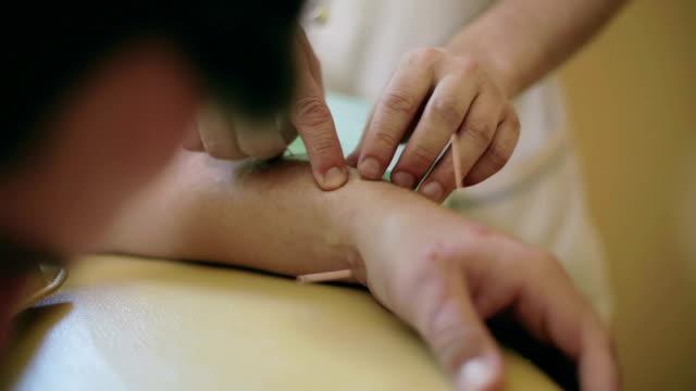 läkaren palpates patientens skadad arm och injiceras nål i patientens arm. - acupuncture bildbanksvideor och videomaterial från bakom kulisserna