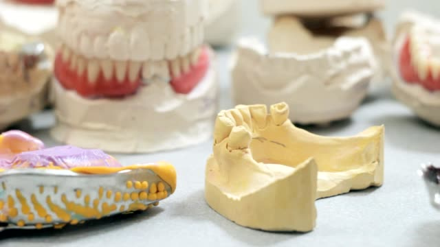 The doctor removes the denture from the model of the jaw and then puts back video