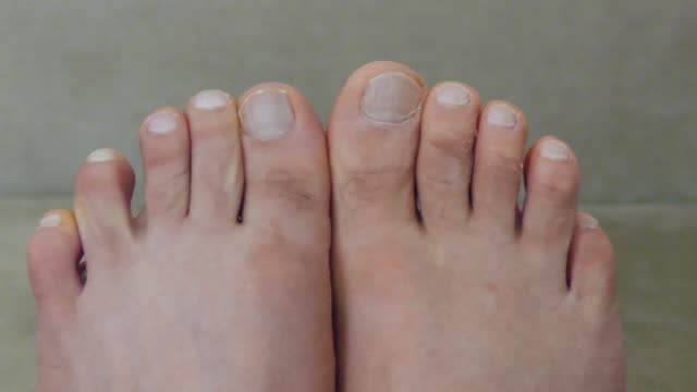 the feet and toes of a man,athlete's foot disease, itchy toes, - dito del piede video stock e b–roll