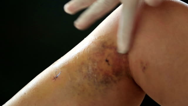 The leg after the medical varicose veins surgery video