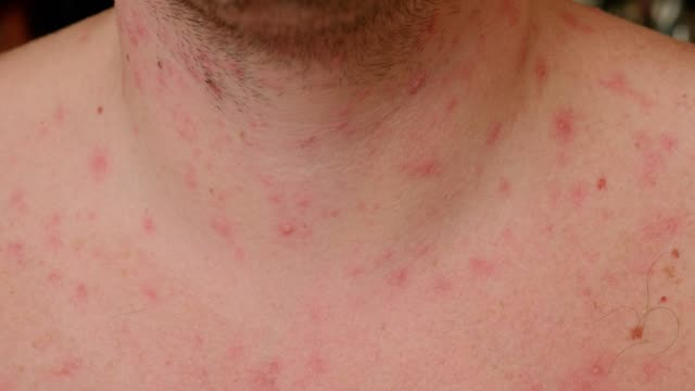 수두에서 물집이있는 성인 남성의 목과 가슴. - aids 스톡 비디오 및 b-롤 화면