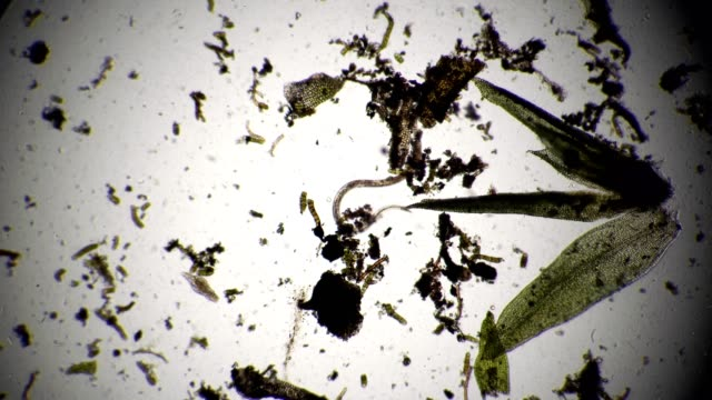 stockvideo's en b-roll-footage met de nematode in algen feeds omgeven door een kolonie van infusoria - worm